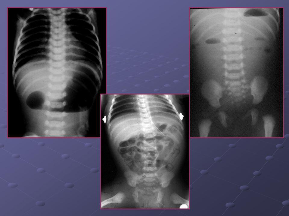 1-Etat des bases pulmonaires 2-Epaisseur de la paroi abdominale 3-Situs des organes pleins sous diaphragmatiques 4-Epaisseur des muscles 5-Aspect du s