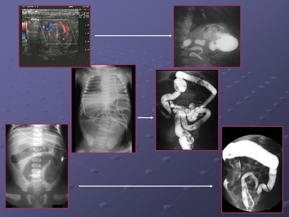 Les opacifications Très informatives dans les occlusions néonatales malformatives Très informatives dans les occlusions néonatales malformatives Vienn