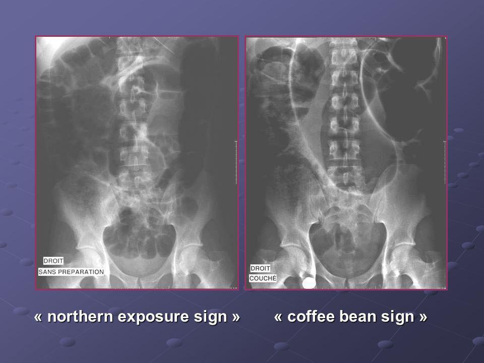 Cas n°3 Garçon de 19 ans Pas dantécédents particuliers Douleurs et distension abdominales, vomissements Examen distension diffuse, pas de signes de pé