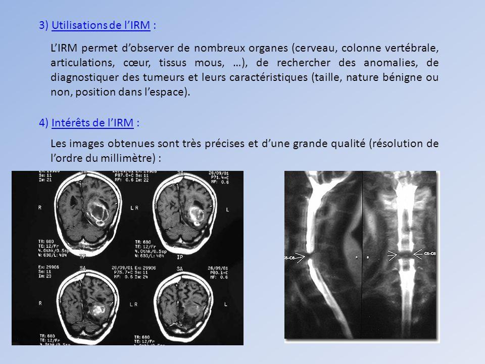 3) Utilisations de lIRM : LIRM permet dobserver de nombreux organes (cerveau, colonne vertébrale, articulations, cœur, tissus mous, …), de rechercher