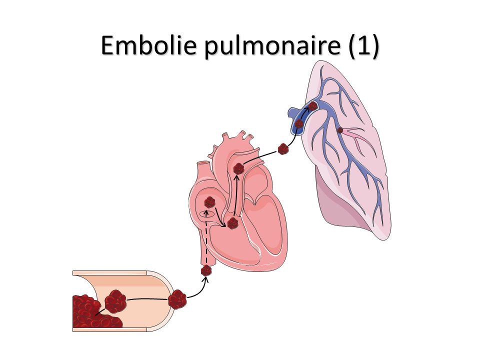 Embolie pulmonaire (1)