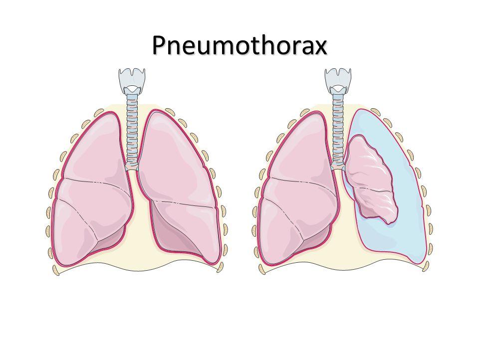 Pneumothorax Poumons sainsPneumothorax
