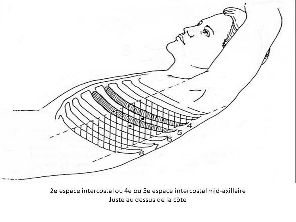 2e espace intercostal ou 4e ou 5e espace intercostal mid-axillaire Juste au dessus de la côte