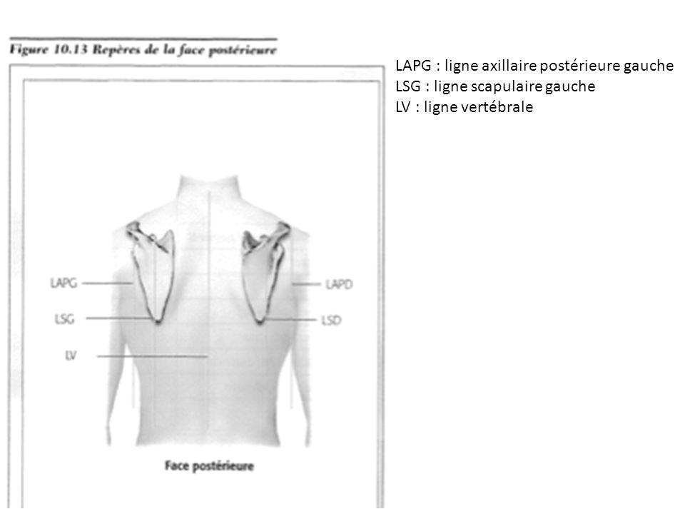 LSG : ligne scapulaire gauche LV : ligne vertébrale