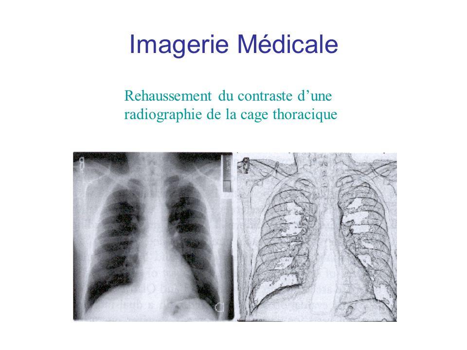 Imagerie Médicale Rehaussement du contraste dune radiographie de la cage thoracique