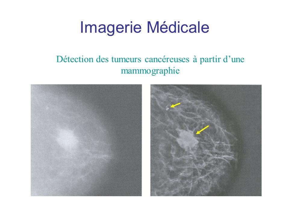 Imagerie Médicale Détection des tumeurs cancéreuses à partir dune mammographie