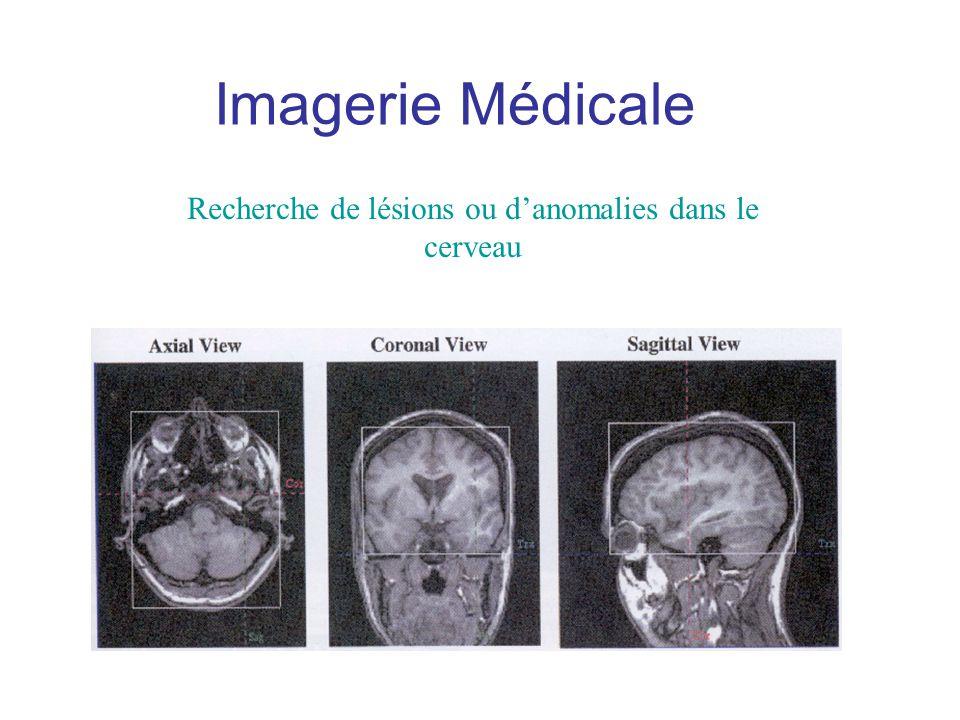 Recherche de lésions ou danomalies dans le cerveau Imagerie Médicale