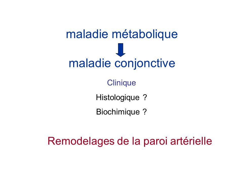 maladie métabolique maladie conjonctive Remodelages de la paroi artérielle Clinique Histologique ? Biochimique ?