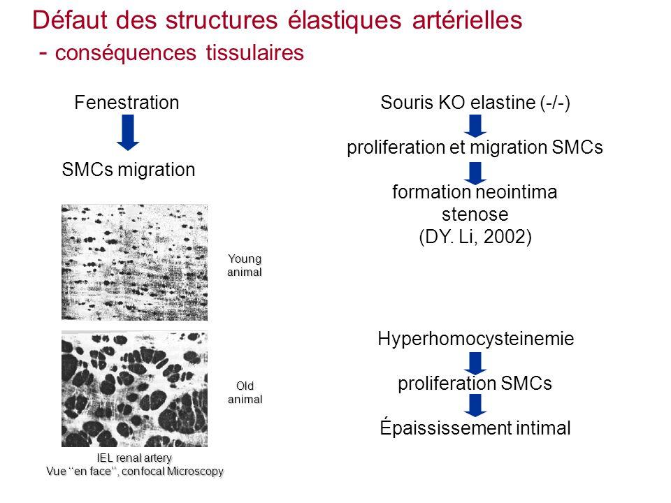 Défaut des structures élastiques artérielles - conséquences tissulaires Souris KO elastine (-/-) proliferation et migration SMCs formation neointima stenose (DY.
