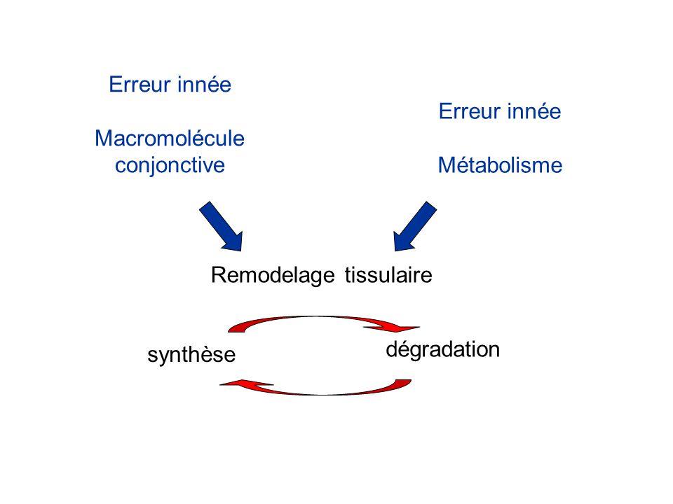 Erreur innée Macromolécule conjonctive Erreur innée Métabolisme Remodelage tissulaire synthèse dégradation