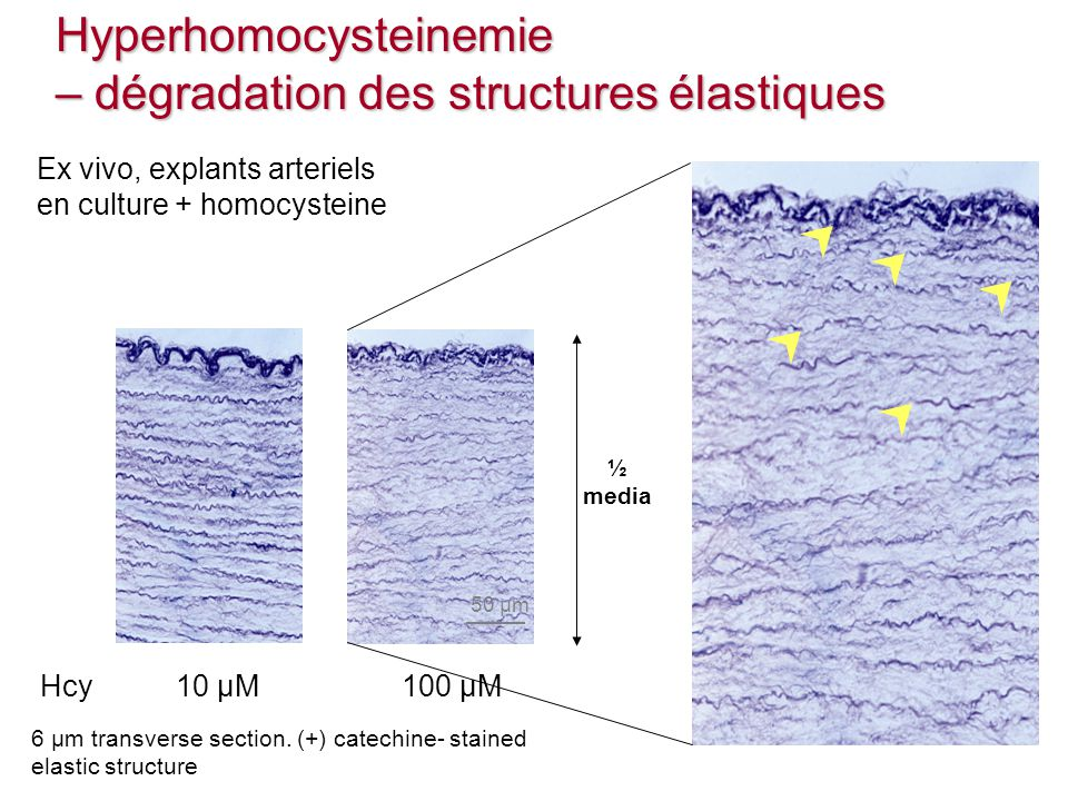 10 µM100 µMHcy 50 µm 6 µm transverse section. (+) catechine- stained elastic structure Ex vivo, explants arteriels en culture + homocysteine ½ mediaHy