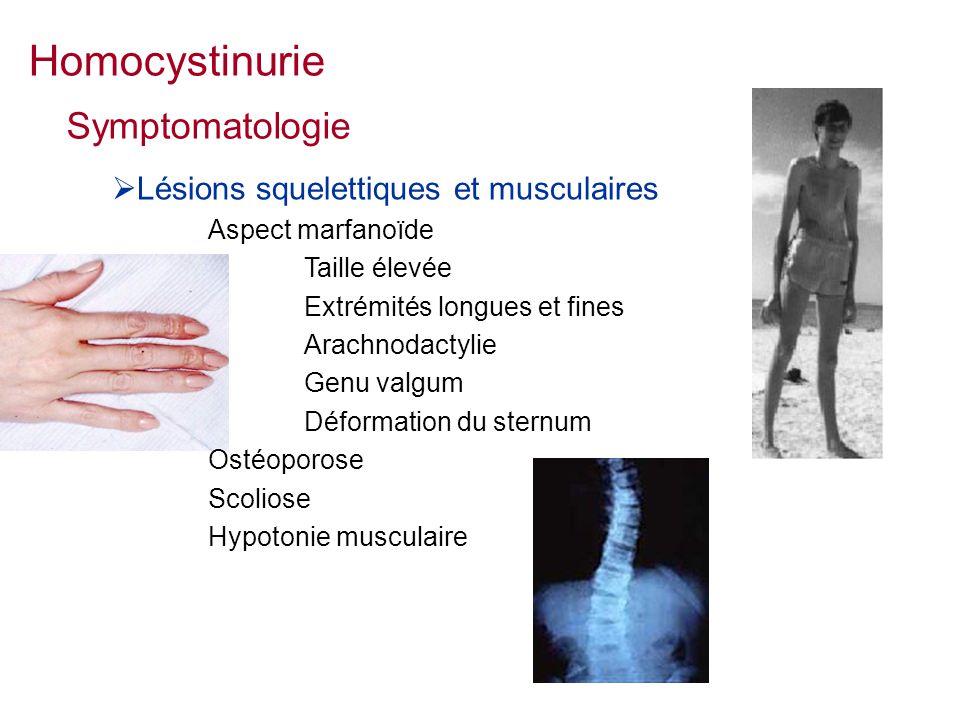 Lésions squelettiques et musculaires Aspect marfanoïde Taille élevée Extrémités longues et fines Arachnodactylie Genu valgum Déformation du sternum Ostéoporose Scoliose Hypotonie musculaire Symptomatologie Homocystinurie