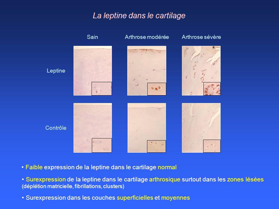 La leptine dans le cartilage Surexpression de la leptine dans le cartilage arthrosique surtout dans les zones lésées (déplétion matricielle, fibrillat