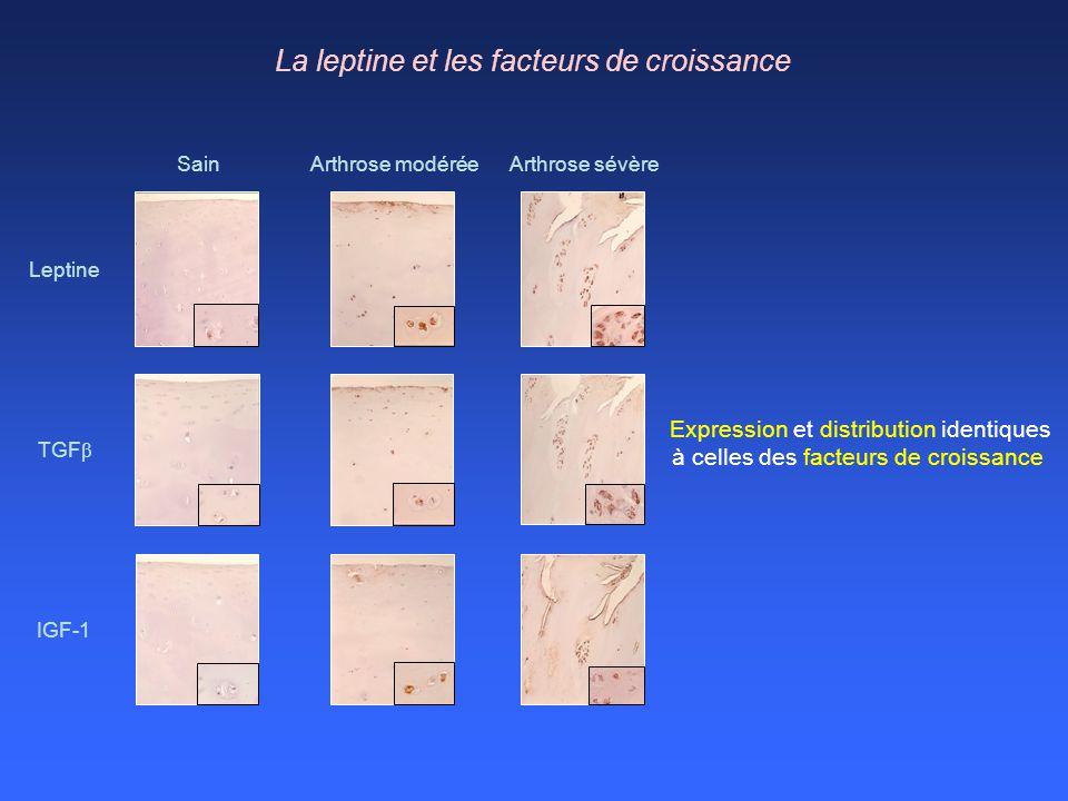 Arthrose modéréeArthrose sévèreSain Leptine TGF β IGF-1 La leptine et les facteurs de croissance Expression et distribution identiques à celles des fa