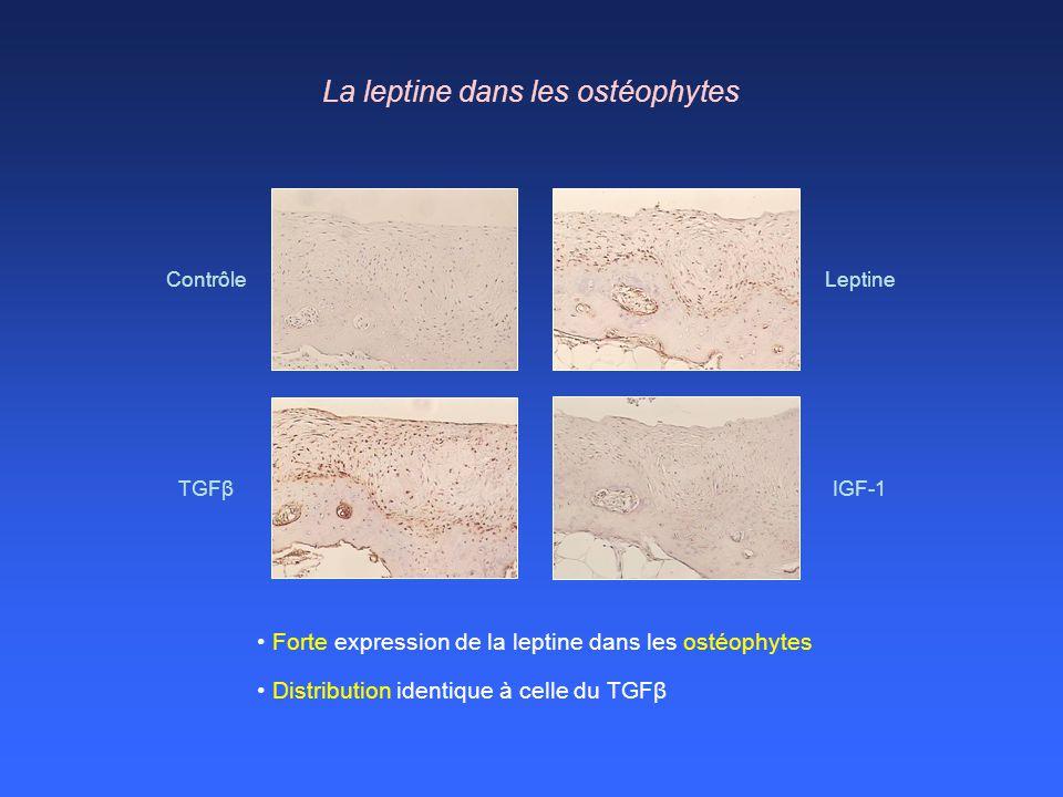 Forte expression de la leptine dans les ostéophytes Leptine TGFβ IGF-1 Contrôle La leptine dans les ostéophytes Distribution identique à celle du TGFβ