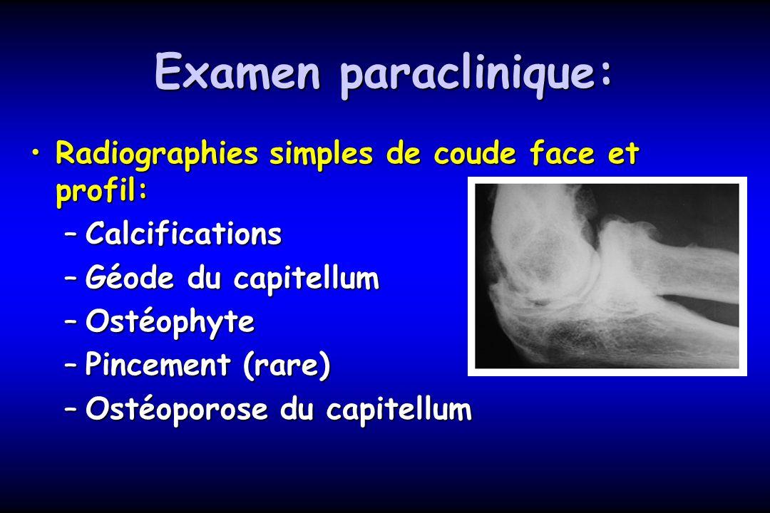 Examen paraclinique: Radiographies simples de coude face et profil:Radiographies simples de coude face et profil: –Calcifications –Géode du capitellum