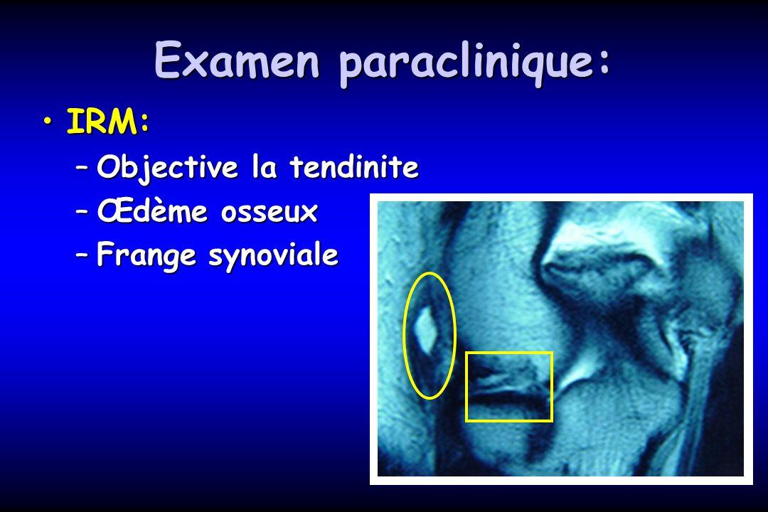 Examen paraclinique: IRM:IRM: –Objective la tendinite –Œdème osseux –Frange synoviale
