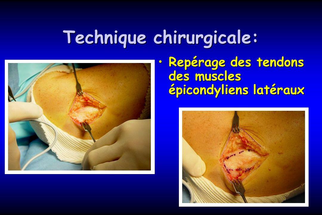 Technique chirurgicale: Repérage des tendons des muscles épicondyliens latérauxRepérage des tendons des muscles épicondyliens latéraux