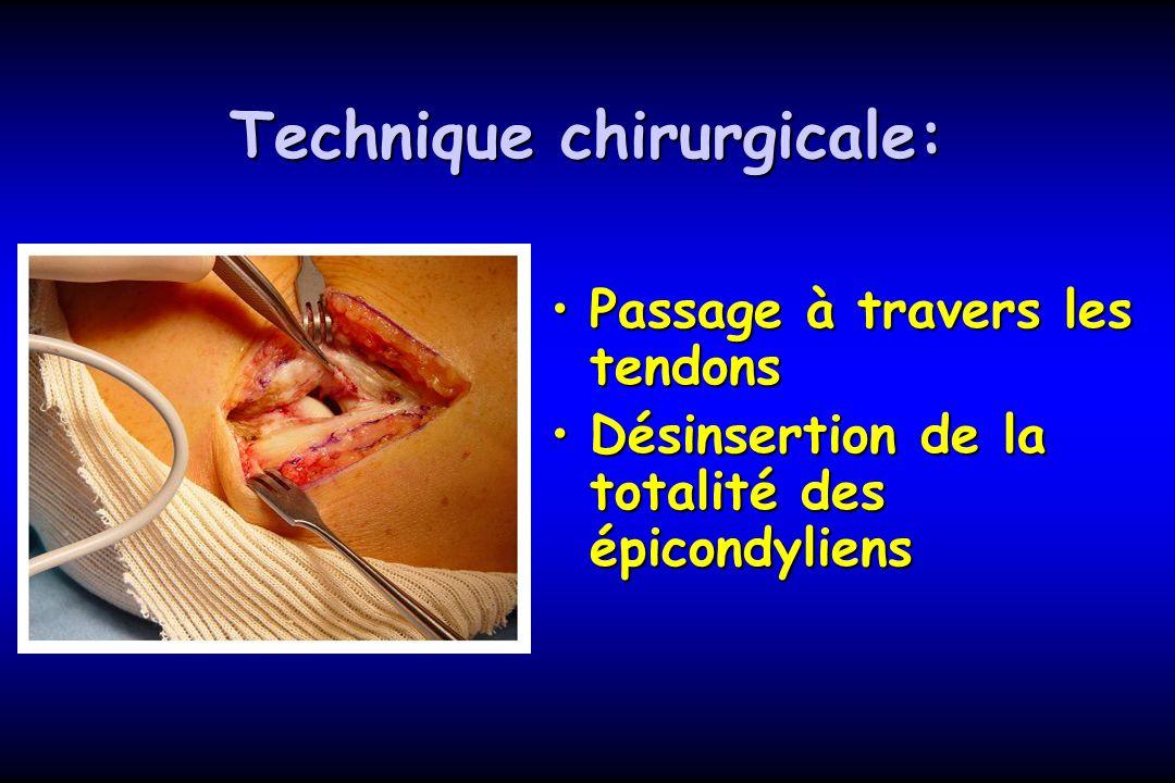 Technique chirurgicale: Passage à travers les tendonsPassage à travers les tendons Désinsertion de la totalité des épicondyliensDésinsertion de la tot