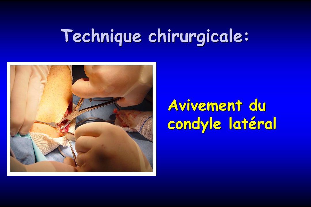 Avivement du condyle latéral Technique chirurgicale: