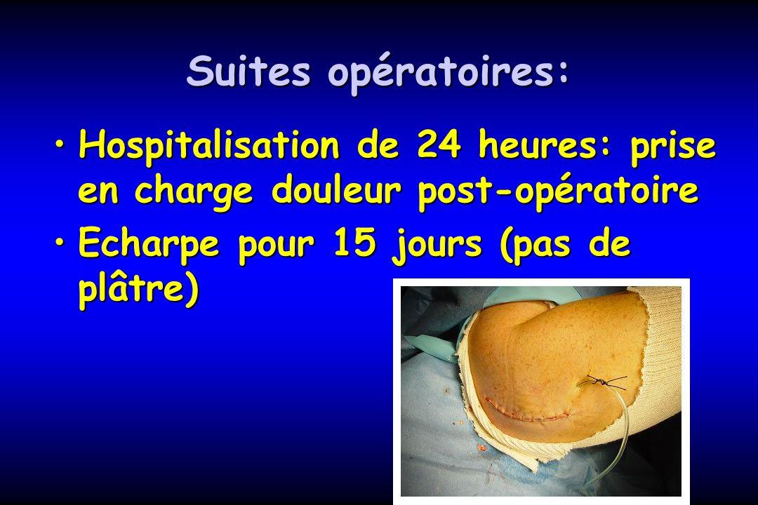 Suites opératoires: Hospitalisation de 24 heures: prise en charge douleur post-opératoireHospitalisation de 24 heures: prise en charge douleur post-op