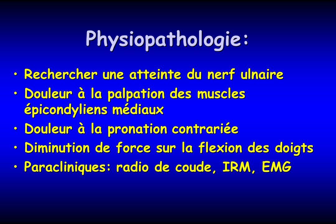 Physiopathologie: Rechercher une atteinte du nerf ulnaireRechercher une atteinte du nerf ulnaire Douleur à la palpation des muscles épicondyliens médi