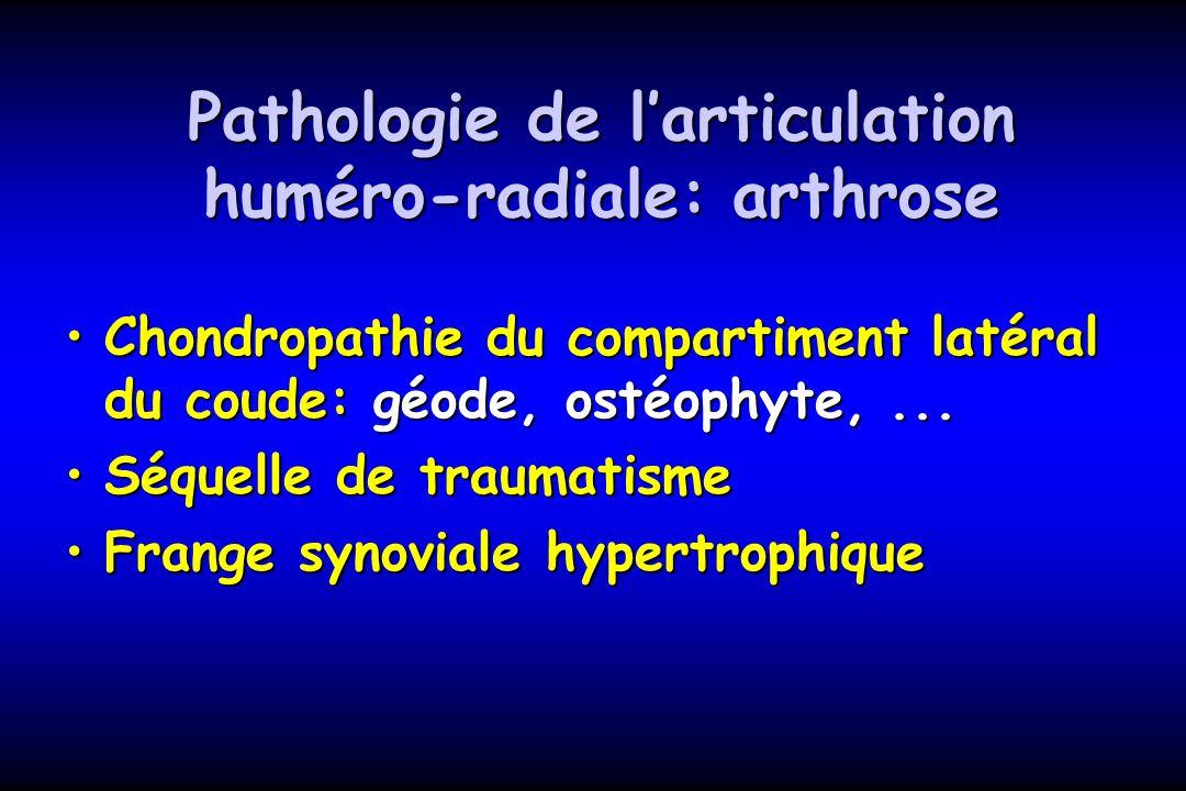 Pathologie de larticulation huméro-radiale: arthrose Chondropathie du compartiment latéral du coude: géode, ostéophyte,...Chondropathie du compartimen