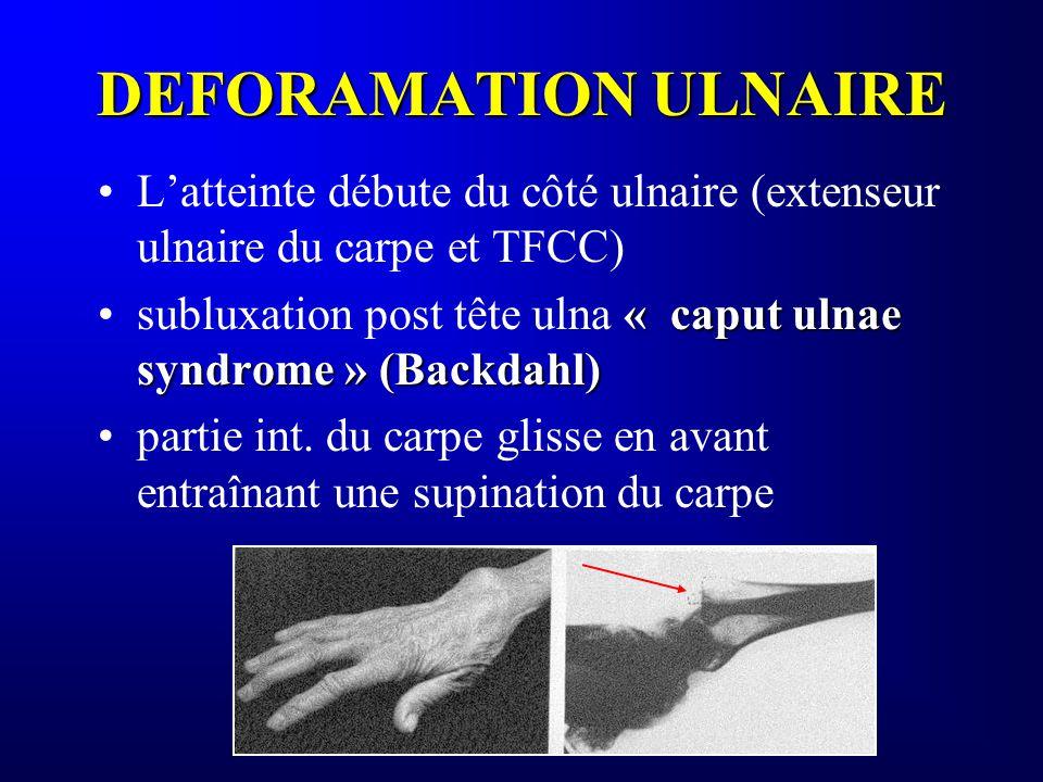 DEFORAMATION ULNAIRE Latteinte débute du côté ulnaire (extenseur ulnaire du carpe et TFCC) « caput ulnae syndrome » (Backdahl)subluxation post tête ul