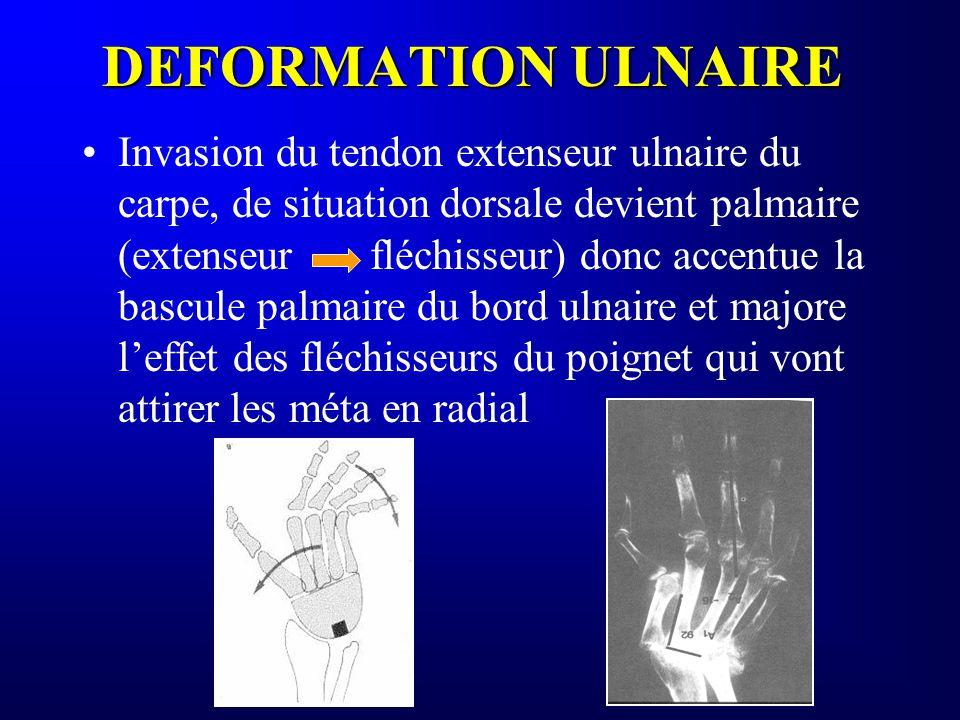 DEFORMATION ULNAIRE Invasion du tendon extenseur ulnaire du carpe, de situation dorsale devient palmaire (extenseurfléchisseur) donc accentue la bascu