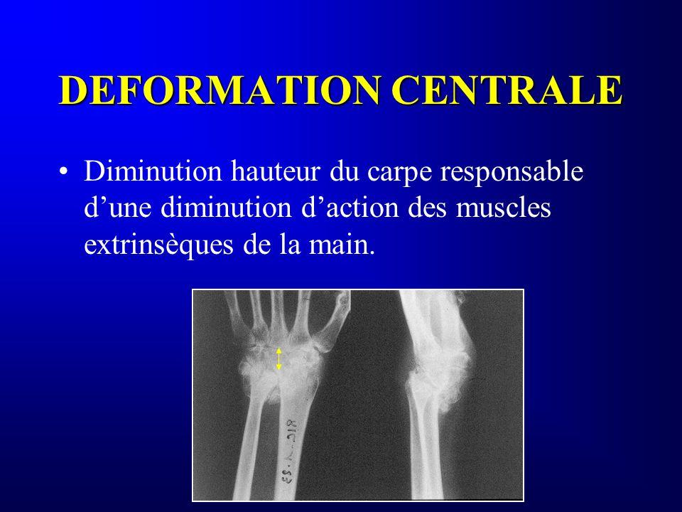 DEFORMATION CENTRALE Diminution hauteur du carpe responsable dune diminution daction des muscles extrinsèques de la main.