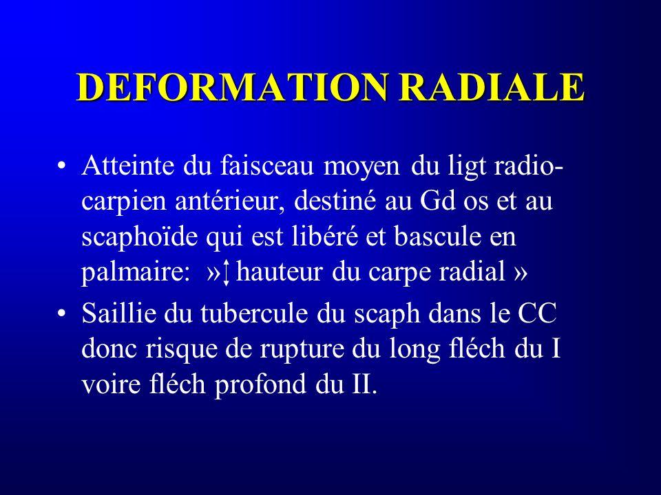 DEFORMATION RADIALE Atteinte du faisceau moyen du ligt radio- carpien antérieur, destiné au Gd os et au scaphoïde qui est libéré et bascule en palmair