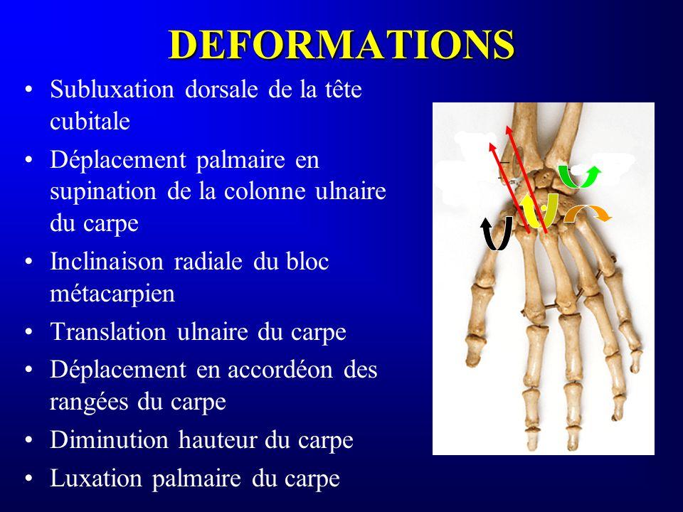 DEFORMATIONS Subluxation dorsale de la tête cubitale Déplacement palmaire en supination de la colonne ulnaire du carpe Inclinaison radiale du bloc mét