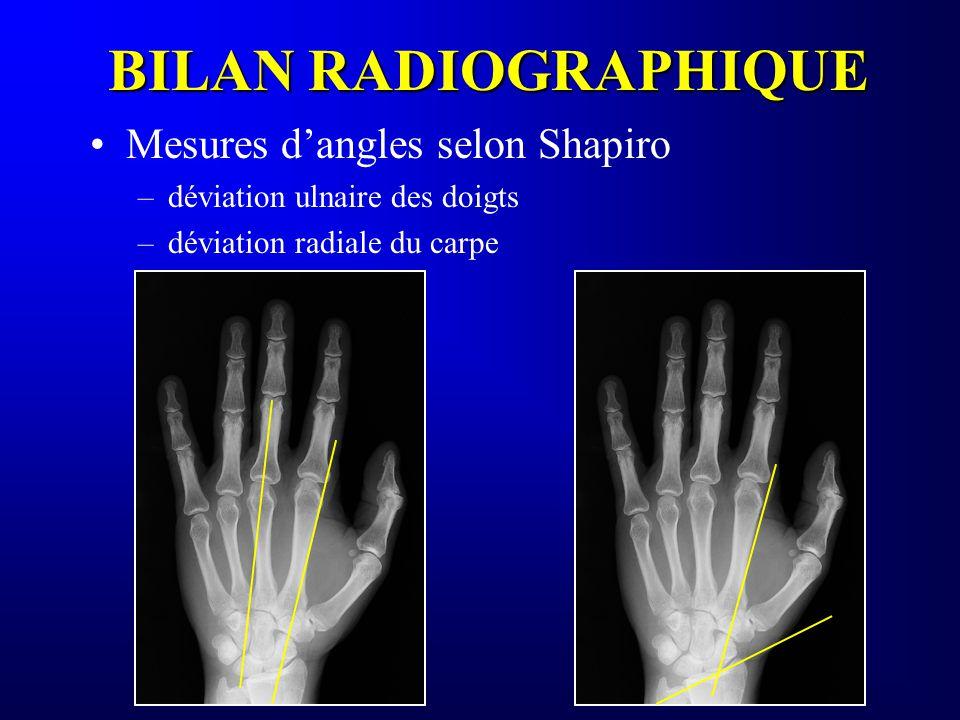 BILAN RADIOGRAPHIQUE Mesures dangles selon Shapiro –déviation ulnaire des doigts –déviation radiale du carpe