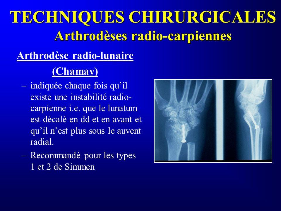 TECHNIQUES CHIRURGICALES Arthrodèses radio-carpiennes Arthrodèse radio-lunaire (Chamay) –indiquée chaque fois quil existe une instabilité radio- carpi