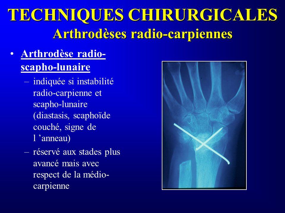 TECHNIQUES CHIRURGICALES Arthrodèses radio-carpiennes Arthrodèse radio- scapho-lunaire –indiquée si instabilité radio-carpienne et scapho-lunaire (dia