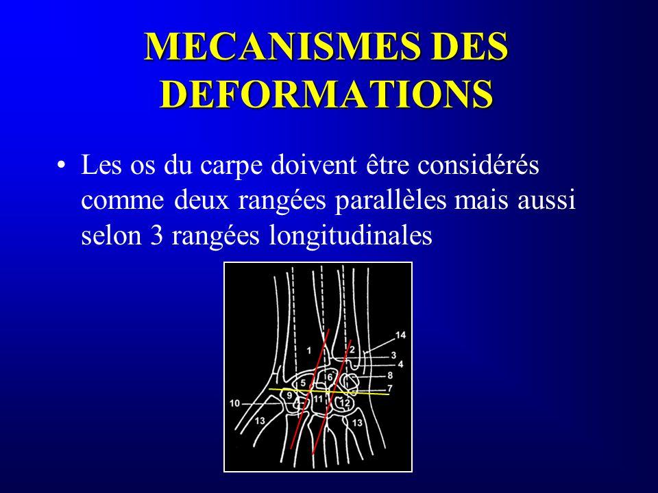 MECANISMES DES DEFORMATIONS Les os du carpe doivent être considérés comme deux rangées parallèles mais aussi selon 3 rangées longitudinales