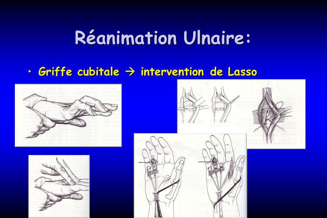 Réanimation Ulnaire: Griffe cubitale intervention de LassoGriffe cubitale intervention de Lasso