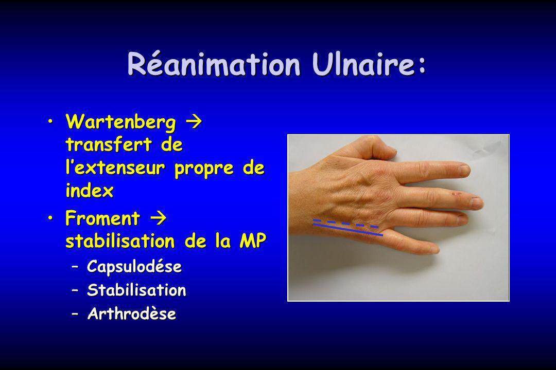 Réanimation Ulnaire: Wartenberg transfert de lextenseur propre de indexWartenberg transfert de lextenseur propre de index Froment stabilisation de la