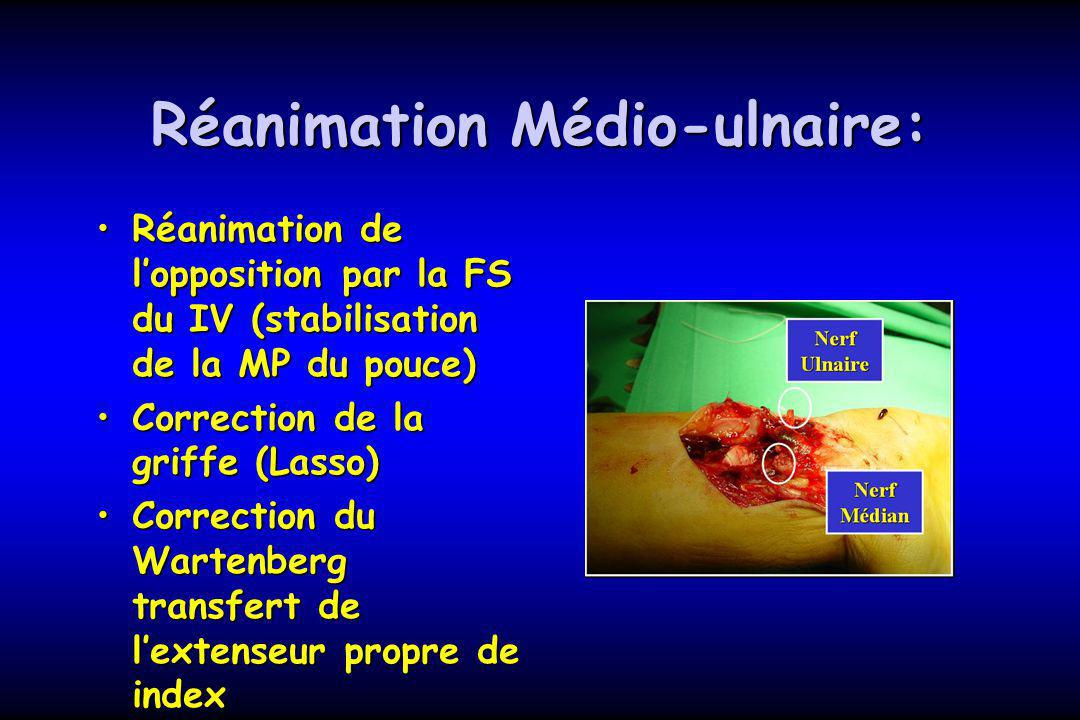 Réanimation Médio-ulnaire: Réanimation de lopposition par la FS du IV (stabilisation de la MP du pouce)Réanimation de lopposition par la FS du IV (sta
