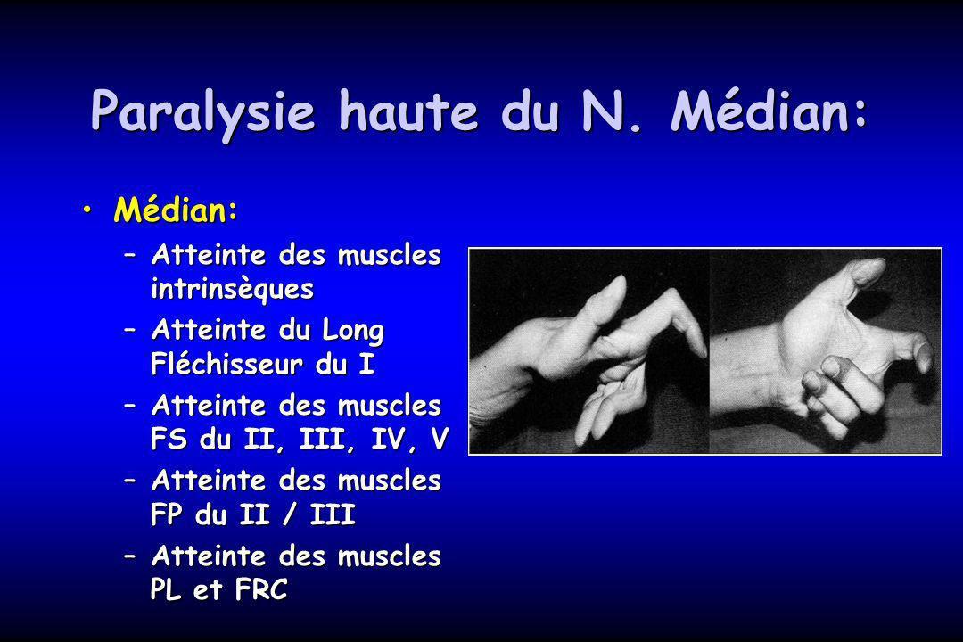 Paralysie haute du N. Médian: Médian:Médian: –Atteinte des muscles intrinsèques –Atteinte du Long Fléchisseur du I –Atteinte des muscles FS du II, III