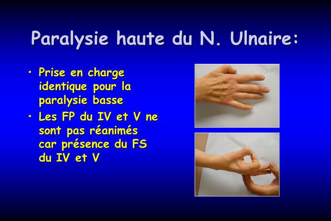 Paralysie haute du N. Ulnaire: Prise en charge identique pour la paralysie bassePrise en charge identique pour la paralysie basse Les FP du IV et V ne