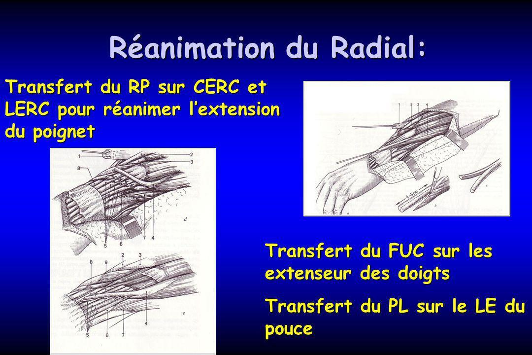 Réanimation du Radial: Transfert du RP sur CERC et LERC pour réanimer lextension du poignet Transfert du FUC sur les extenseur des doigts Transfert du
