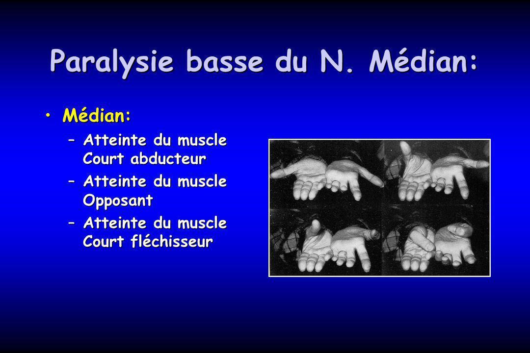 Paralysie basse du N. Médian: Médian:Médian: –Atteinte du muscle Court abducteur –Atteinte du muscle Opposant –Atteinte du muscle Court fléchisseur