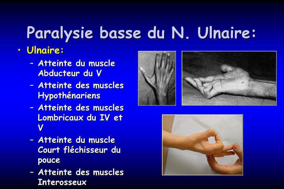 Paralysie basse du N. Ulnaire: Ulnaire:Ulnaire: –Atteinte du muscle Abducteur du V –Atteinte des muscles Hypothénariens –Atteinte des muscles Lombrica