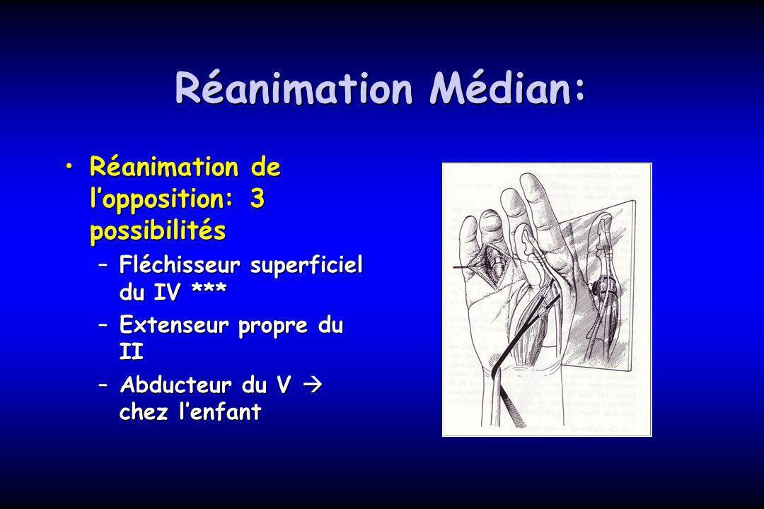 Réanimation Médian: Réanimation de lopposition: 3 possibilitésRéanimation de lopposition: 3 possibilités –Fléchisseur superficiel du IV *** –Extenseur