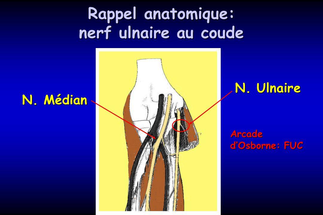 Rappel anatomique: nerf ulnaire au coude N. Ulnaire N. Médian Arcade dOsborne: FUC
