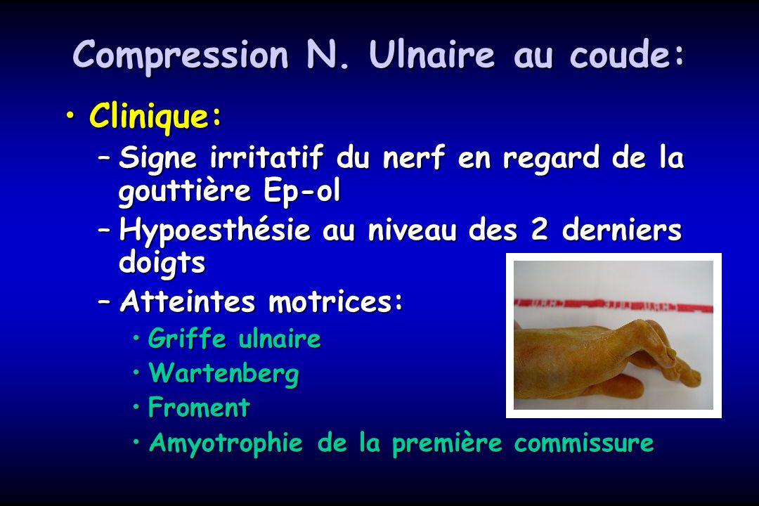 Compression N. Ulnaire au coude: Clinique:Clinique: –Signe irritatif du nerf en regard de la gouttière Ep-ol –Hypoesthésie au niveau des 2 derniers do