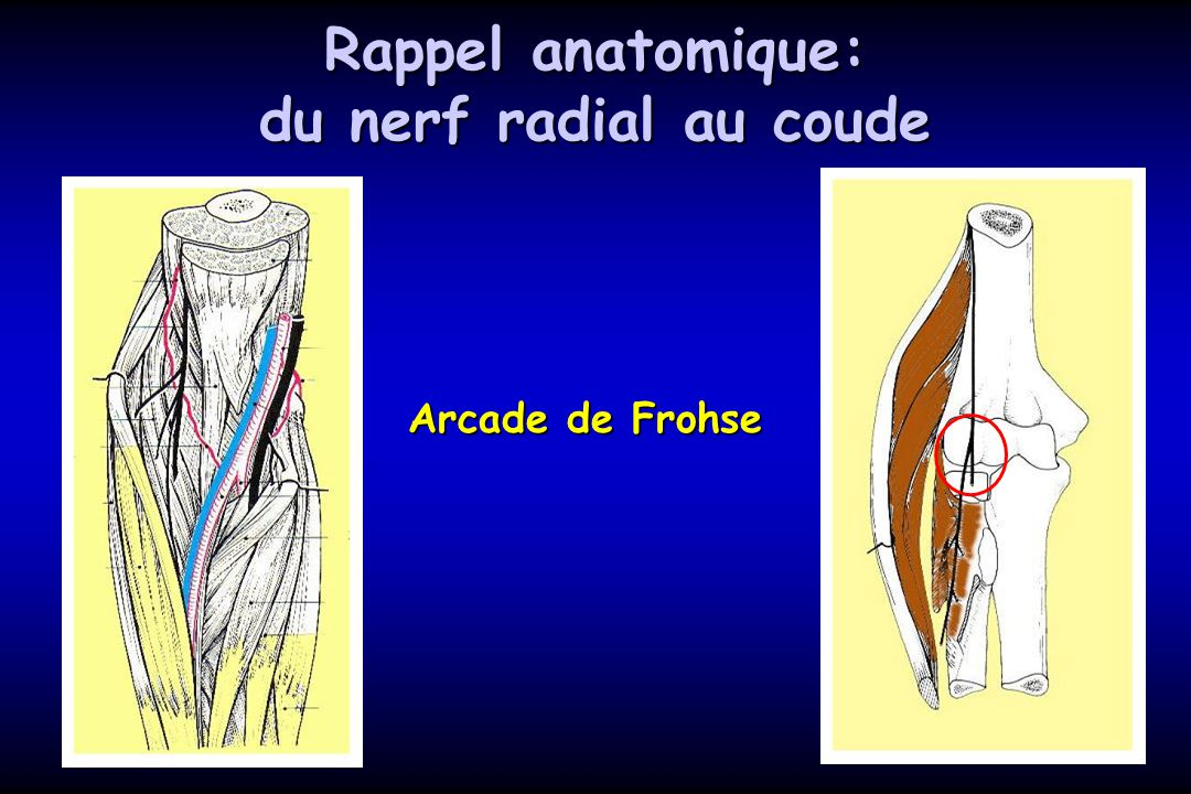 Rappel anatomique: du nerf radial au coude Arcade de Frohse