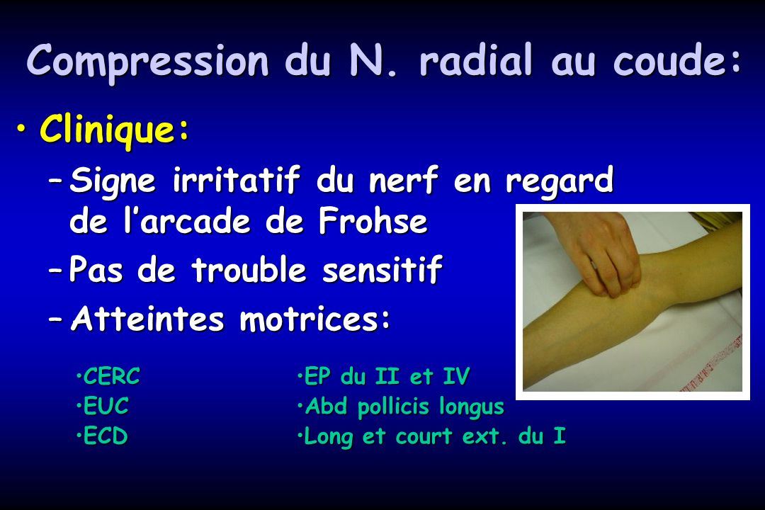 Compression du N. radial au coude: Clinique:Clinique: –Signe irritatif du nerf en regard de larcade de Frohse –Pas de trouble sensitif –Atteintes motr