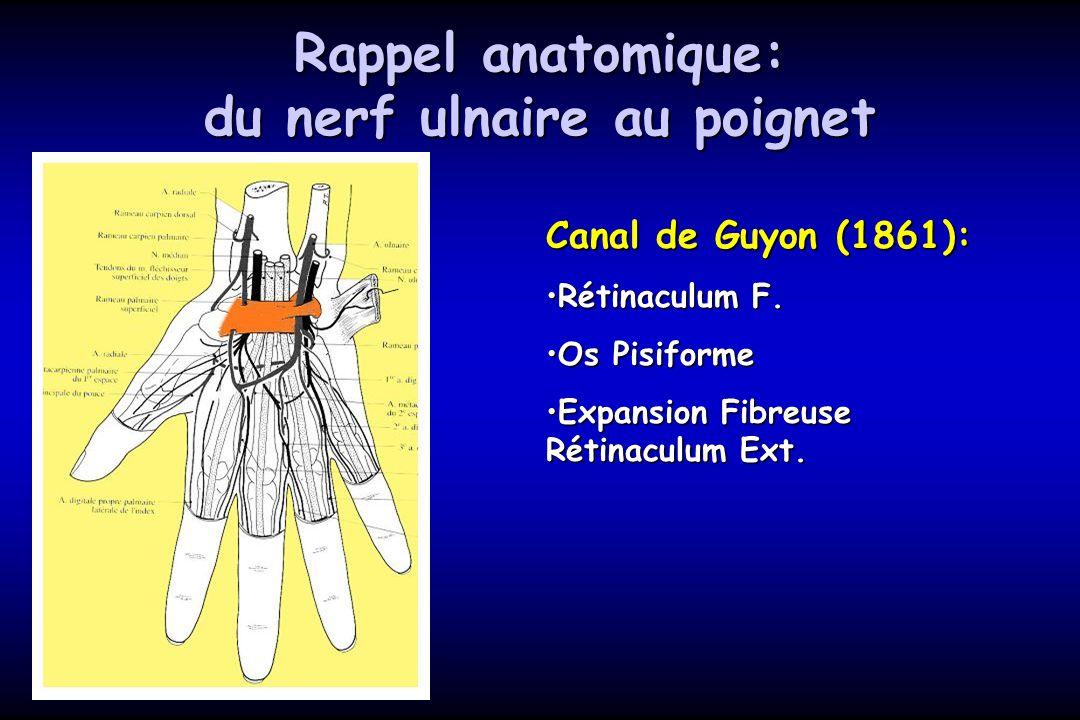 Rappel anatomique: du nerf ulnaire au poignet Canal de Guyon (1861): Rétinaculum F.Rétinaculum F. Os PisiformeOs Pisiforme Expansion Fibreuse Rétinacu